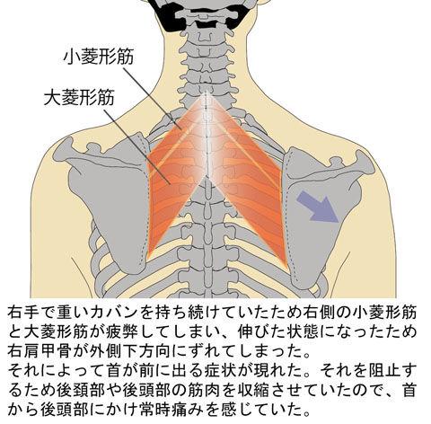 菱形筋の「ゆ」による肩甲骨の「ド」