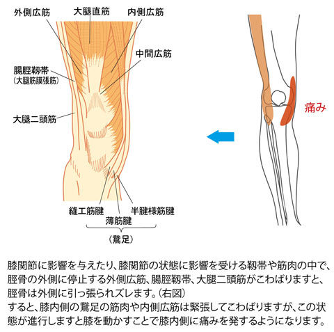 脛骨のズレによる膝内側の痛み
