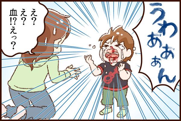 保育中の流血事故【赤すぐ】