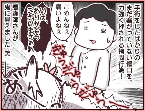 帝王切開4