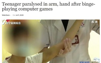 中国 ゲーム 脳卒中に関連した画像-02