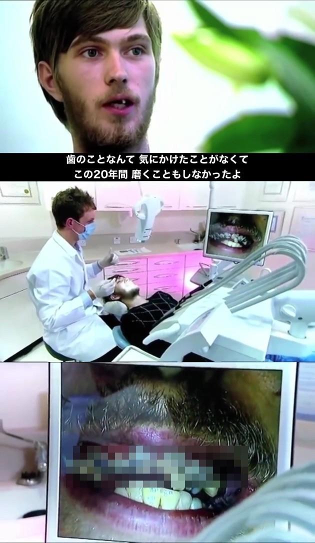 20年間一度も歯磨きしなかった男性に関連した画像-02