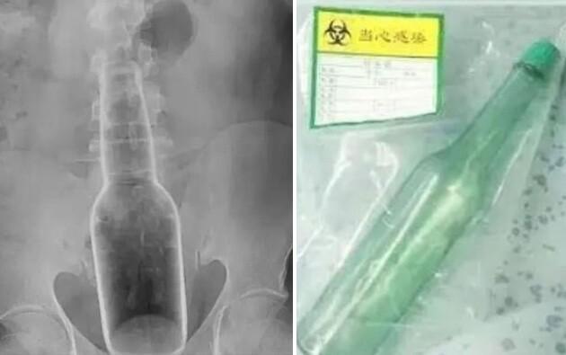 お尻にガラス瓶に関連した画像-02