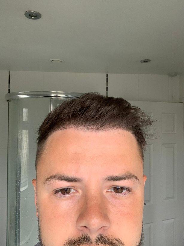 トルコ 植毛 髪の毛に関連した画像-05