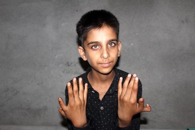 インド 手指 親指多指症に関連した画像-03