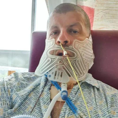 歯医者 腫瘍 手術に関連した画像-03