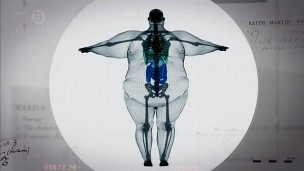900ポンド(408kg)ある男性のレントゲン写真に関連した画像-02