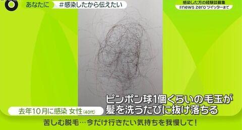 新型コロナ 後遺症 苦しむ脱毛 ピンポン玉くらいの毛玉が髪を洗う度に…