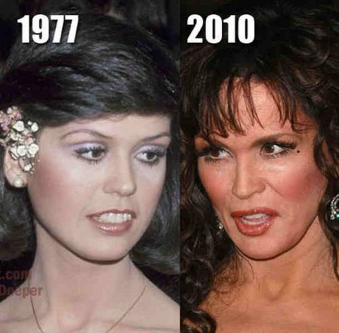 plastic-surgery-25