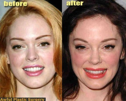 plastic-surgery-35