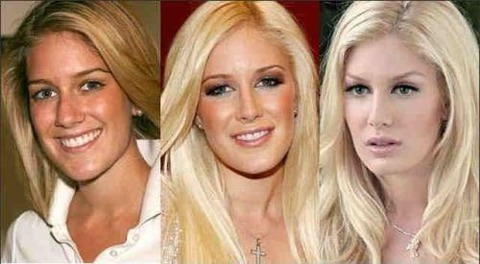 plastic-surgery-4