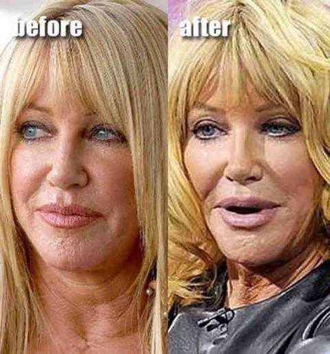 plastic-surgery-23