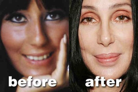 plastic-surgery-31