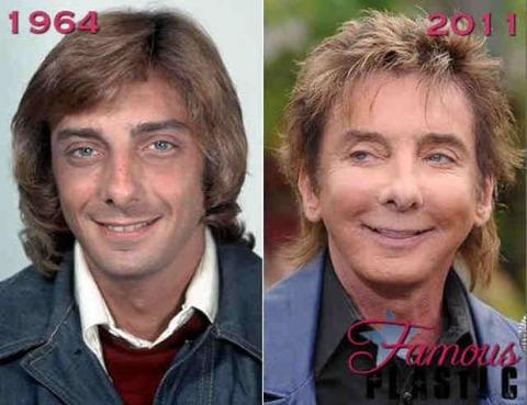 plastic-surgery-28