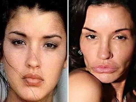 plastic-surgery-6