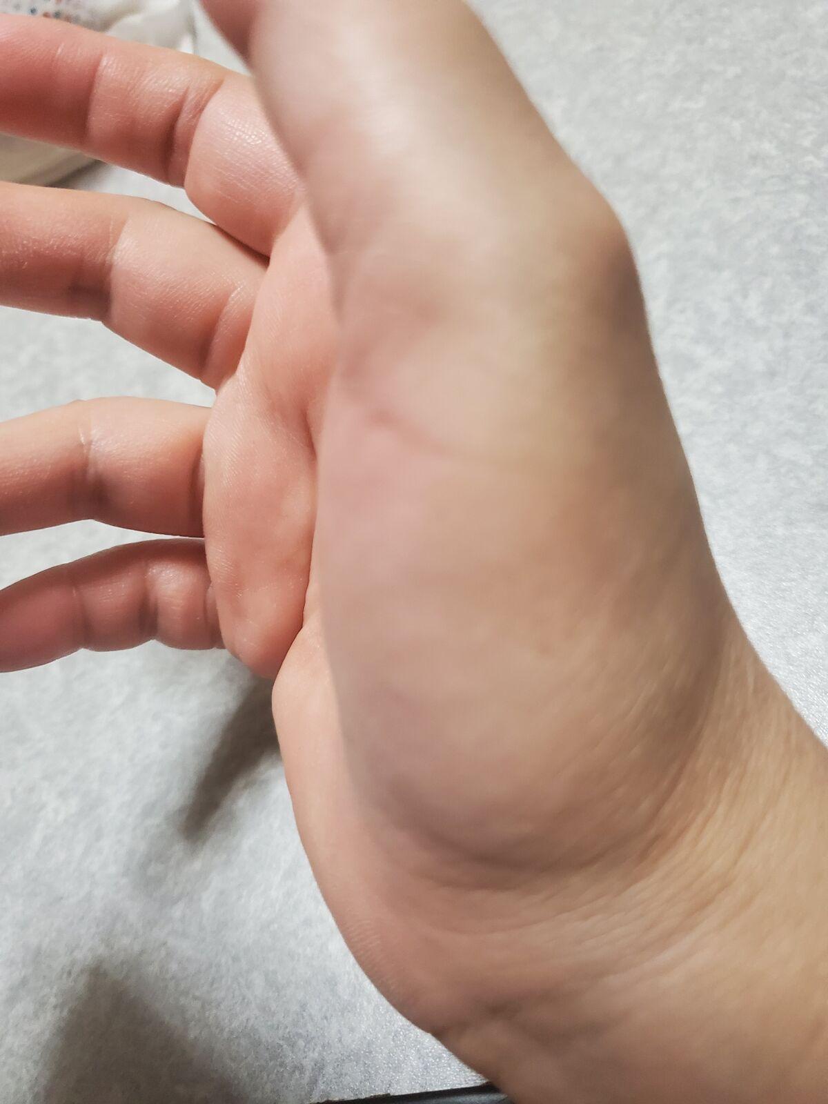 の 付け根 痛い 親指