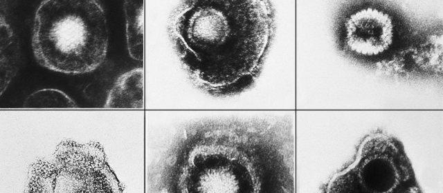 ヘルペスウイルス
