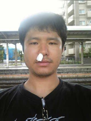 鼻血カード