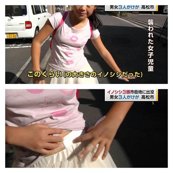 【画像】女子小学生さん、可愛すぎたせいでイノシシに襲われてしまう