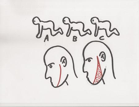sketch-1-THC-sm