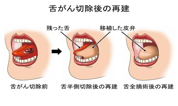 難病でも頑張っている人たち 7 舌癌(ぜつがん)を公表した堀