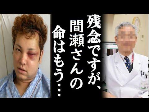 間瀬翔太 顔面崩壊した病気 (2)