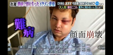 間瀬翔太 顔面崩壊した病気 (4)