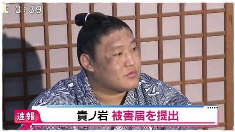 日馬富士事件の真相4