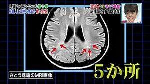 さとう珠緒 脳梗塞現在 (2)