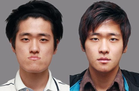 korean_plastic_surgery_19