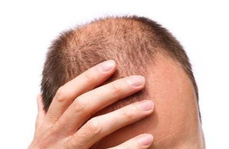 髪が薄くなったり白髪が多い若者多くないか?