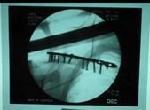 ランス鎖骨1