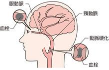 retinal-artery-occlusion01