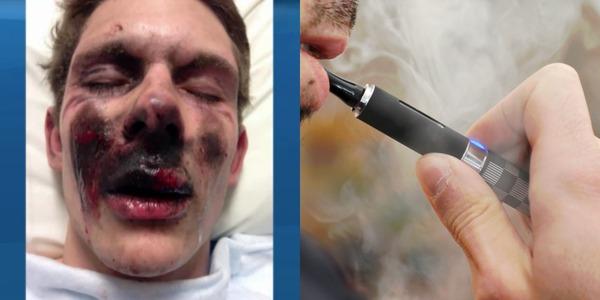 1454038840-e-cigarette-explosion-photos