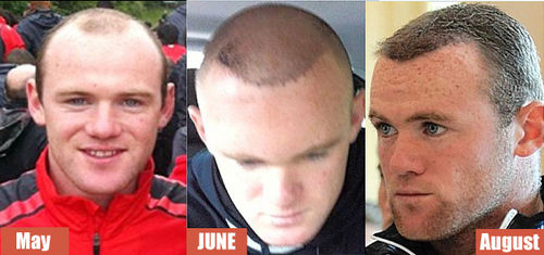 wayne-rooney-before-after-hair-transplant-thumb-500x235-4172