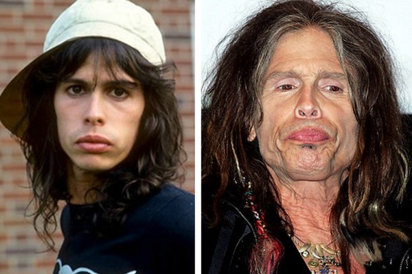 drugs-vs-celebs-before-after-09